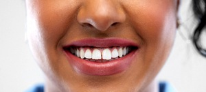 A woman with a small gap between her two front teeth before cosmetic dental bonding