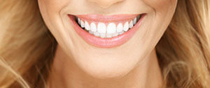 Woman sharing gorgeous smile after cosmetic dentistry